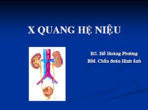 Xquang He nieu