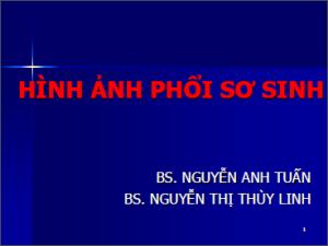 13052013_HinhAnhPhoiSoSinh_BsLinh